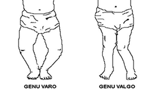 http://clinicaderodillas.com.mx/images/genu-varo-dr-campuzano.jpg