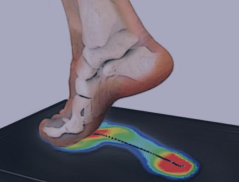 scanner feet